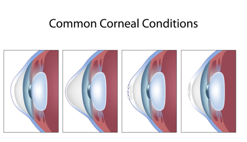 cornea is damaged